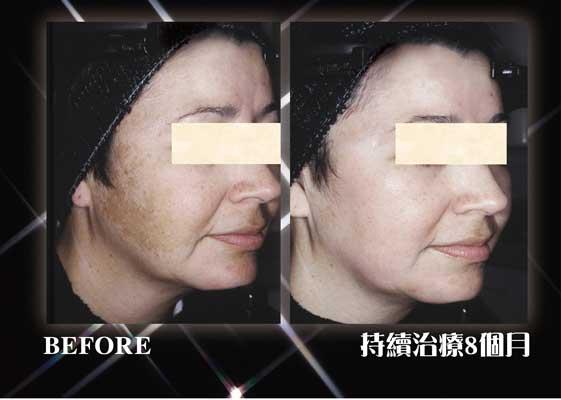 三合一去斑膏療程比較前後圖