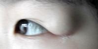 眼皮浮腫 不是脂肪是腫瘤